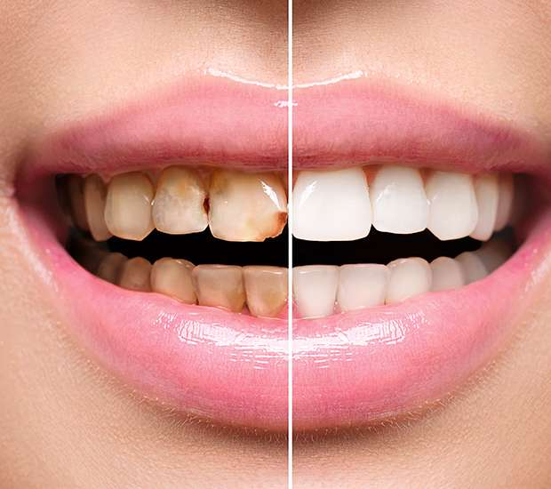 Bell Gardens Dental Implant Restoration