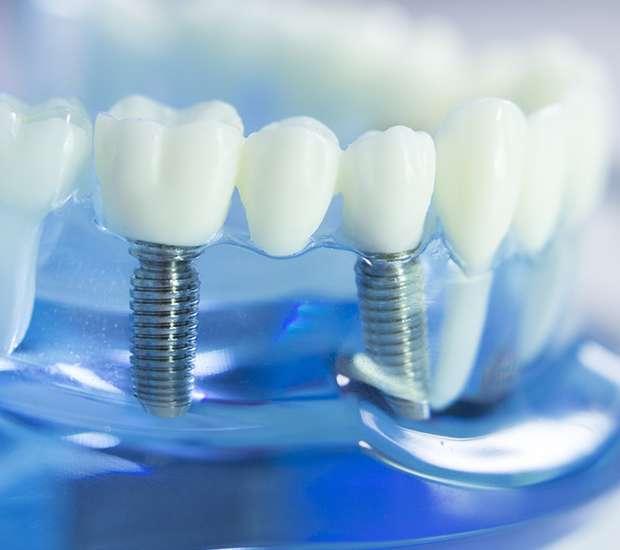 Bell Gardens Dental Implants