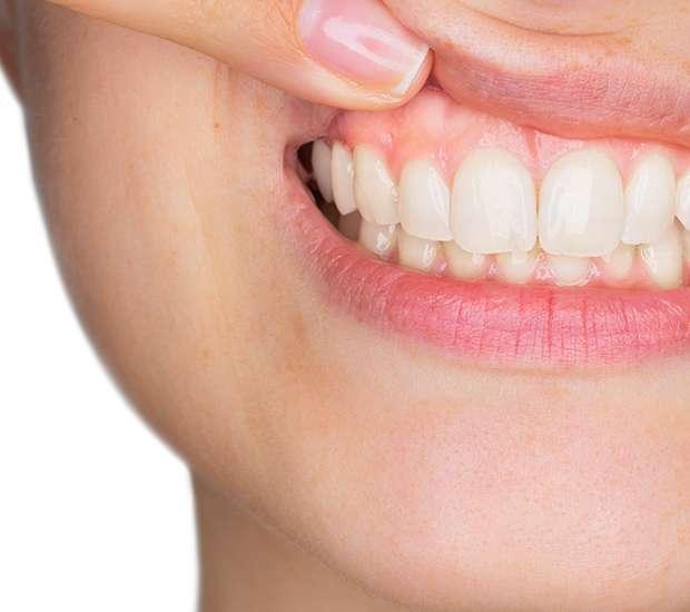 Bell Gardens Gum Disease