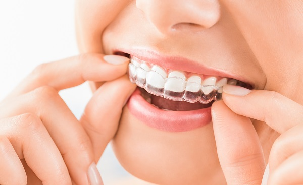 Caring For Your Invisalign Trays