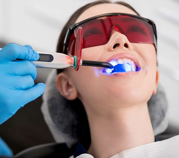 Bell Gardens Professional Teeth Whitening